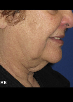 Neck Lift Patient 5