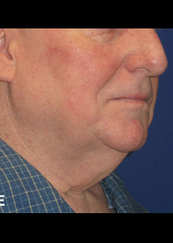 Neck Lift Patient 6