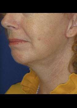 Neck Lift Patient 7