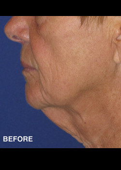 Neck Lift Patient 15